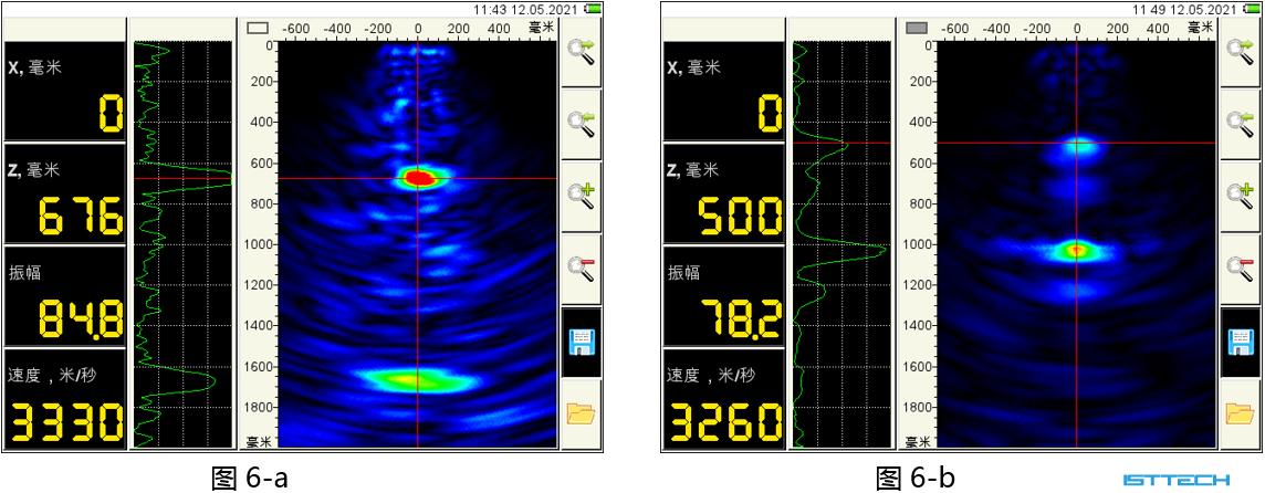 超声波断层扫描仪